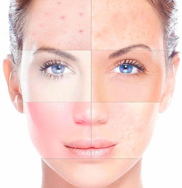 Cuidados de la piel para antes de tu boda